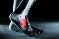 Symptoms of Tarsal Tunnel Syndrome